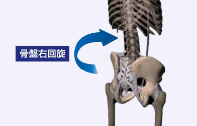 骨盤右回旋